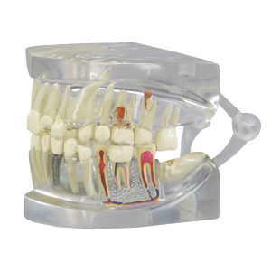 Clear Jaw with Pathologies Model - P558